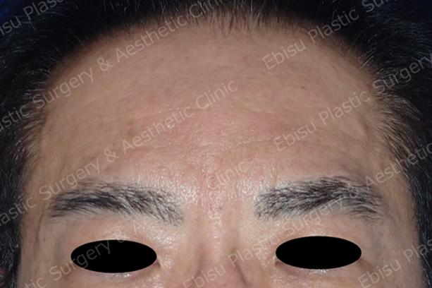 ヒアルロン酸&ボトックス注入症例写真