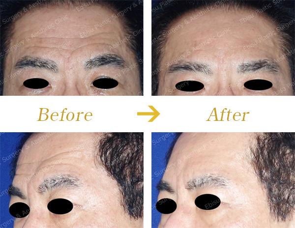 おでこのシワに対する治療(ヒアルロン酸+ボトックス)症例写真