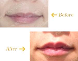 口唇のヒアルロン酸注入のビフォーアフター画像