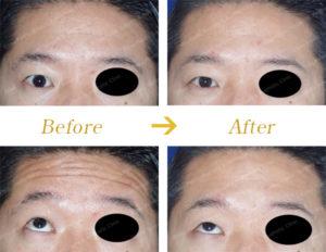額のシワに対するボトックス治療のビフォーアフター画像