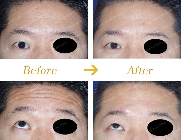 額のシワに対するボトックス治療症例写真
