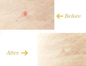 老人性血管腫に対するCO2レーザーのビフォーアフター画像