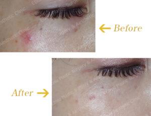 毛細血管拡張症に対するレーザー治療のビフォーアフター画像
