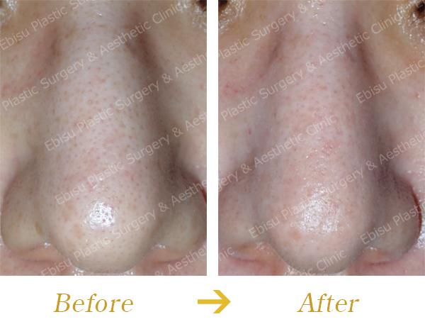 毛穴に対する CO 2 フラクショナルレーザー症例写真