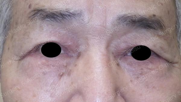 下眼瞼除皺術( Hamra 法) 施症例写真
