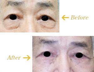 下眼瞼除皺術( Hamra 法を含む)のビフォーアフター画像