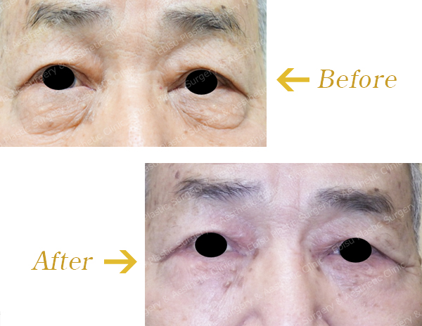 下眼瞼除皺術( Hamra 法を含む)症例写真