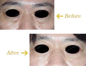 下眼瞼除皺術+脂肪注入術のビフォーアフター画像
