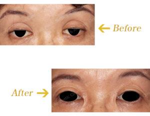 眼瞼下垂症に対する挙筋前転法(上眼瞼形成術)のビフォーアフター画像