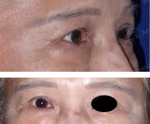 挙筋前転術(上眼瞼形成術)症例写真