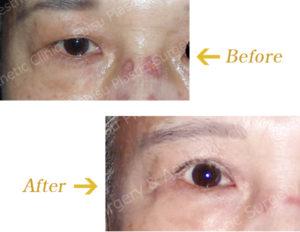 眼瞼下垂症に対する切開法(上眼瞼形成術)のビフォーアフター画像