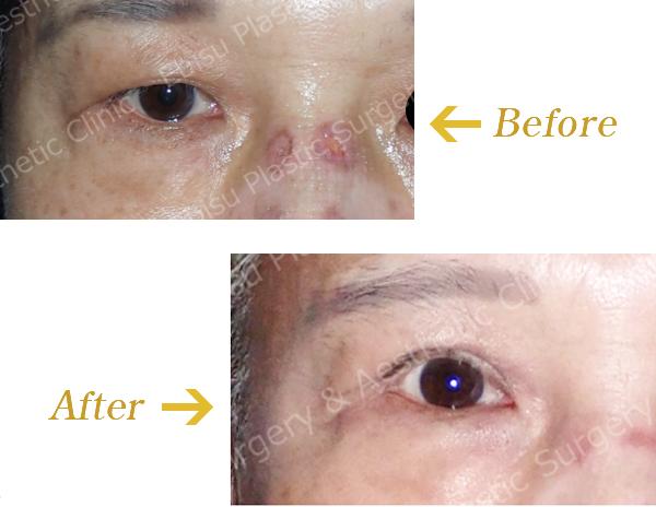 眼瞼下垂症に対する切開法(上眼瞼形成術)症例写真