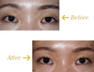 埋没法(上眼瞼形成術):奥二重に作成のビフォーアフター画像
