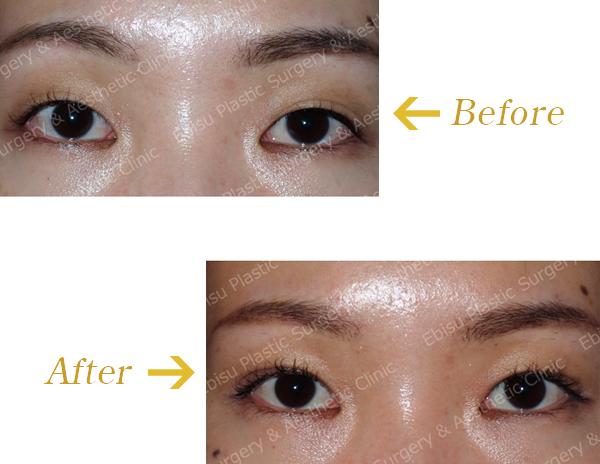 埋没法(上眼瞼形成術):奥二重に作成症例写真