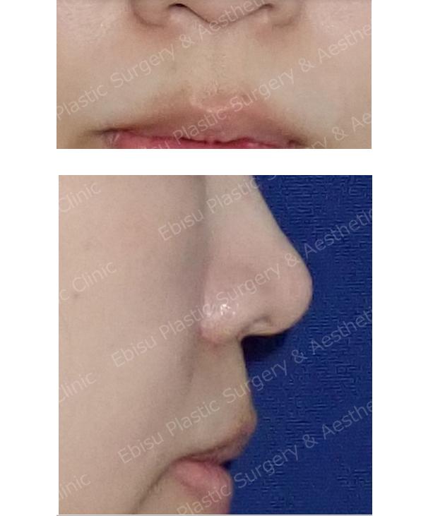 鼻下(人中)短縮術症例写真
