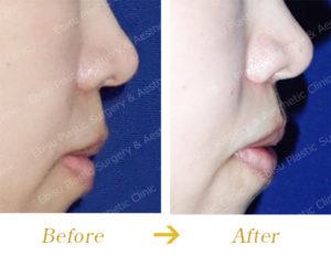 鼻下(人中)短縮術のビフォーアフター画像
