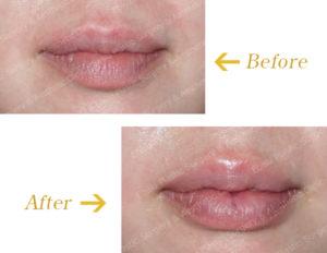 下口唇のピーナッツ手術のビフォーアフター画像