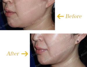 フェイスライン・頬部の脂肪吸引術のビフォーアフター画像
