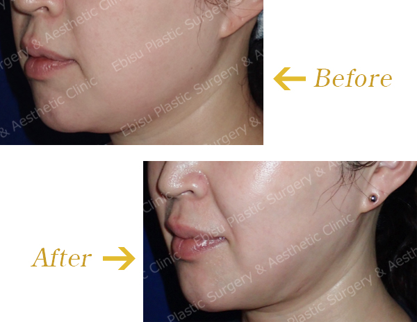 フェイスライン・頬部の脂肪吸引術症例写真