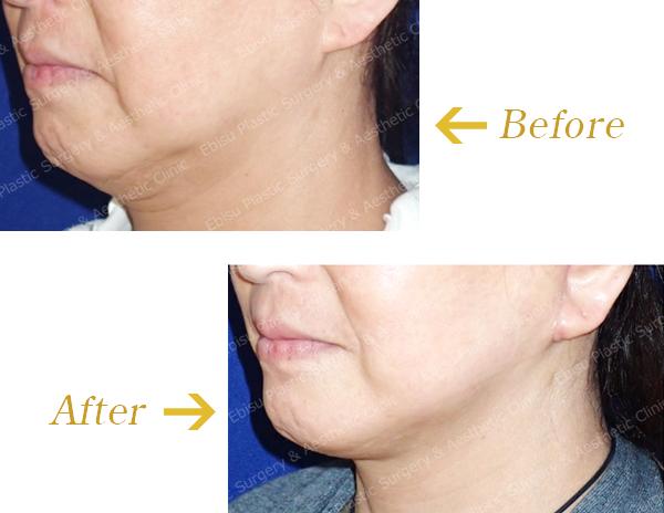 下顔面のフェイスリフト(SMAS法)症例写真
