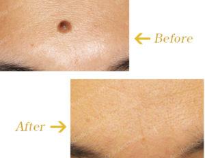 皮膚腫瘍切除術のビフォーアフター画像