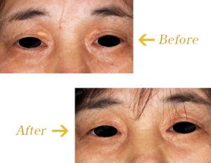 黄色腫に対する外科的治療のビフォーアフター画像