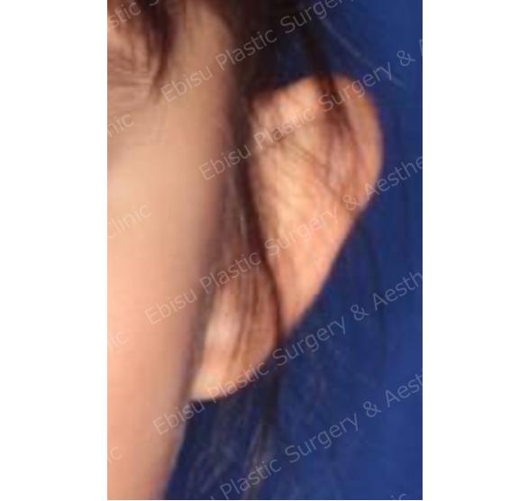 耳介形成術(耳介軟骨形成を要するもの)症例写真