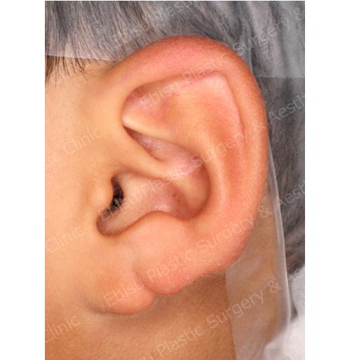 耳垂形成術症例写真