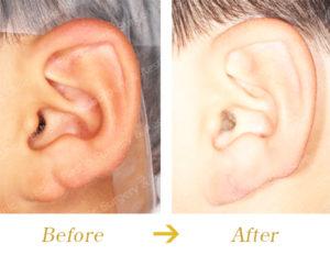 耳垂裂に対する外科的治療のビフォーアフター画像
