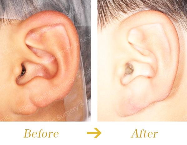 耳垂裂に対する外科的治療症例写真