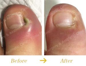陥入爪・側爪郭炎に対する外科的治療(フェノール法)のビフォーアフター画像