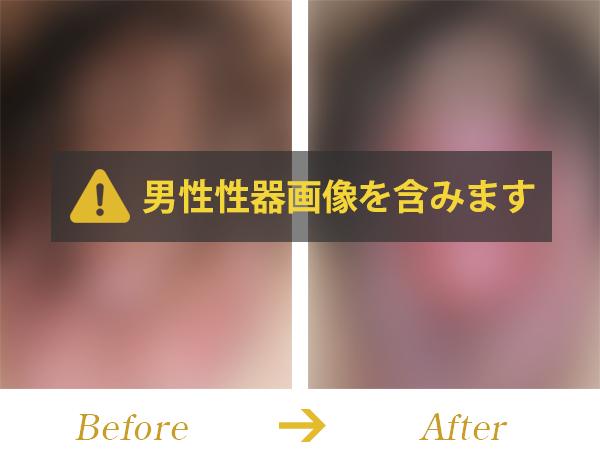 嵌頓包茎に対する緊急手術(背面切開術)症例写真