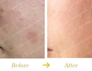 シミ対する PICO レーザー治療のビフォーアフター画像