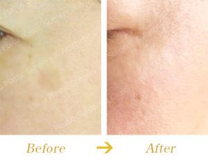 シミ対する PICO レーザー治療(治療の流れ)のビフォーアフター画像