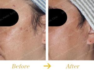 シミ対するフォトフェイシャル治療のビフォーアフター画像