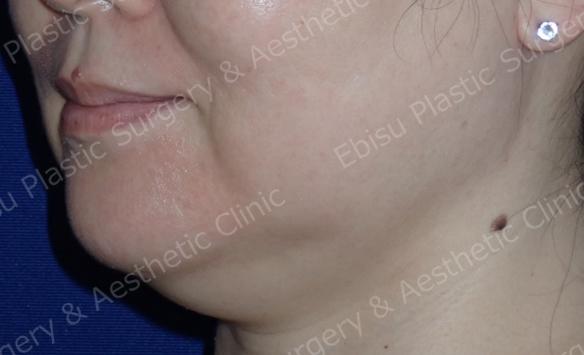あご下の脂肪溶解注射(メソラインスリム<sup>®</sup>)症例写真