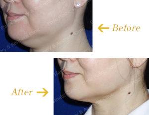 あご下の脂肪溶解注射のビフォーアフター画像