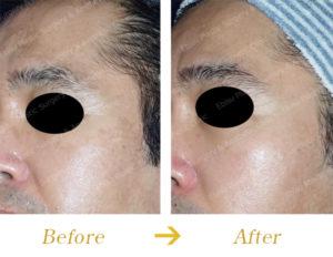 肝斑・シミ対するPICOトーニング&内服治療のビフォーアフター画像