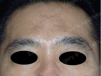 PICOトーニング&内服治療症例写真