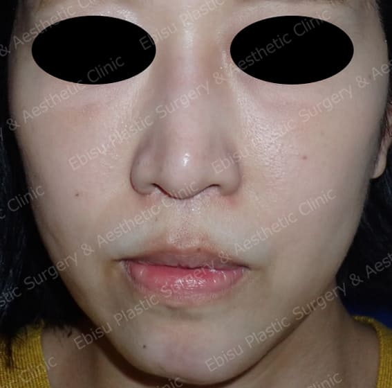 顎プロテーゼによる骨格形成術症例写真