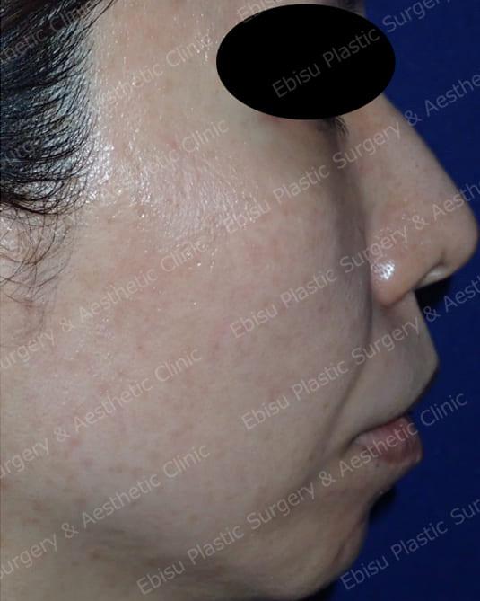 ヒアルロン酸による法令線治療と頬部のリフトアップ症例写真