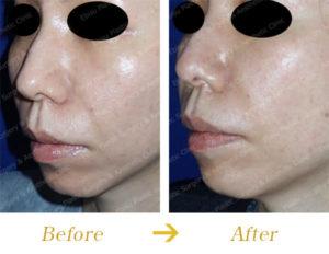 ヒアルロン酸による法令線治療と頬部のリフトアップのビフォーアフター画像