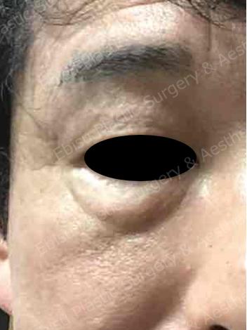 脱脂術(裏ハムラ法)+ 脂肪注入術症例写真